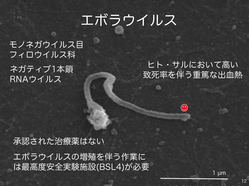 エボラ ウイルス 日本